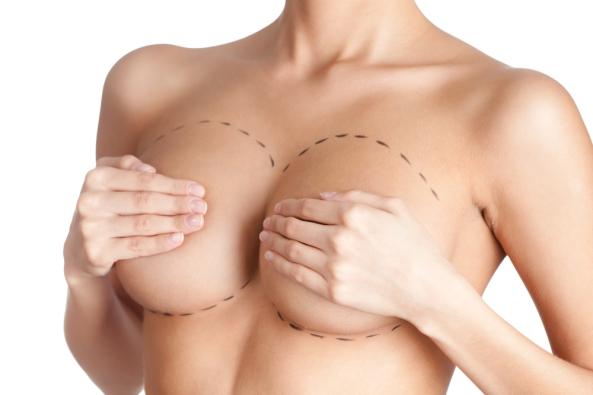 aumento-del-seno